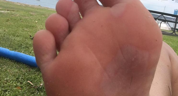 Zoe Starr's blistered foot.